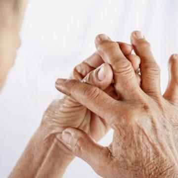 5 recomendaciones para aliviar la artritis durante el invierno